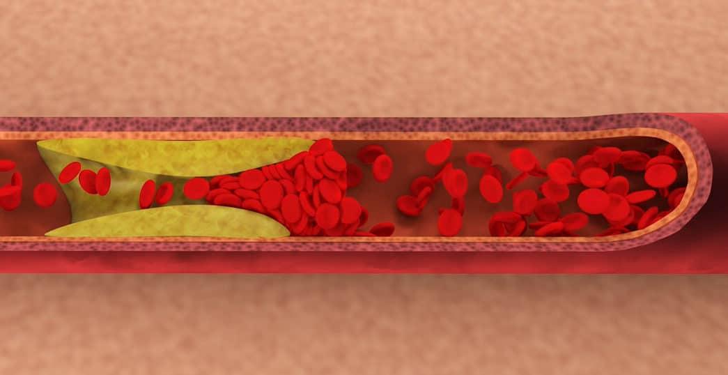 フリー素材に血管内を血液が流れるイメージを追加しました – CG制作 ...
